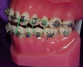 Emergency Care Goldreich Orthodontics Plano Tx